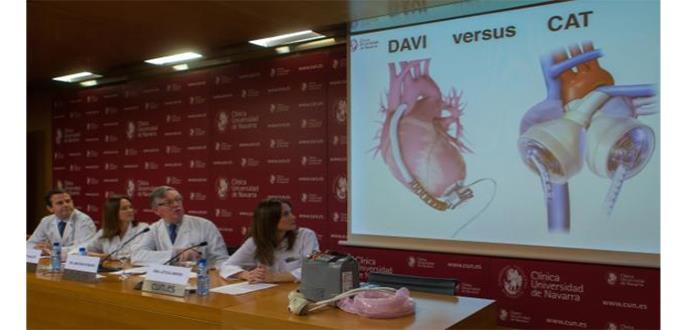 Así es como funciona un corazón artificial completo