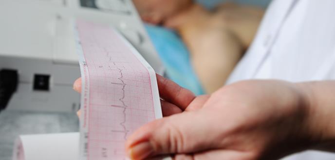 El electrocardiograma de ingreso, clave para identificar el infarto