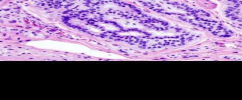Investigan el desarrollo de un test de diagnóstico precoz de tumores colorrectales