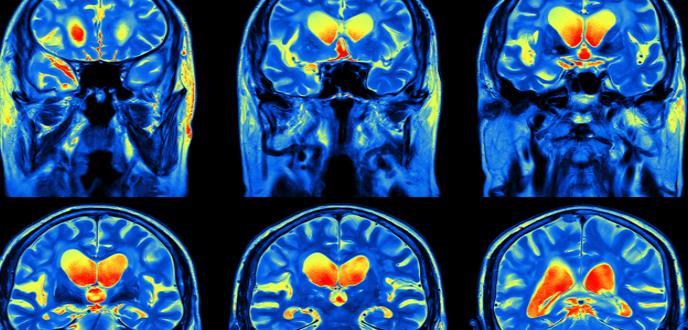 Una inmunoterapia a partir del virus del resfriado modificado consigue frenar el cáncer cerebral más letal