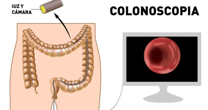 Alimentación: clave en el tratamiento de los cánceres  digestivos