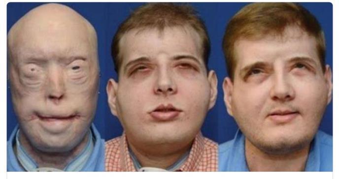 La vida tras el primer trasplante completo de cara