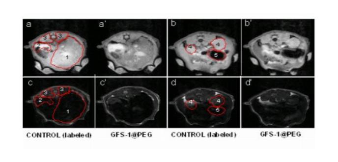 Desarrollan nanopartículas que mejoran el contraste en imágenes de resonancia magnética