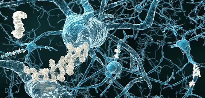 Detectan alteraciones en la estructura cerebral de personas sanas con un mayor riesgo de desarrollar alzhéimer