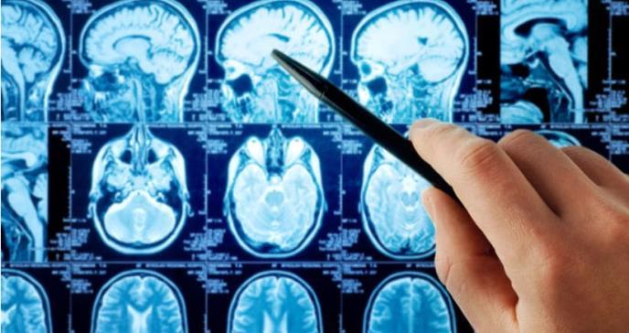 Alteraciones neurológicas: efectos adicionales del cáncer nefrourológico