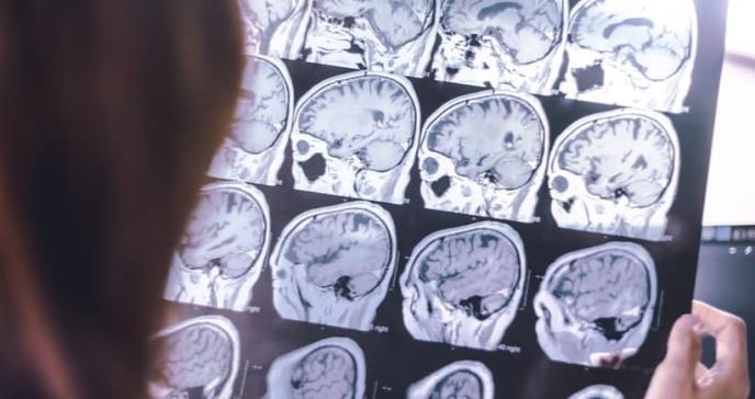 La inmunoterapia llega al alzhéimer