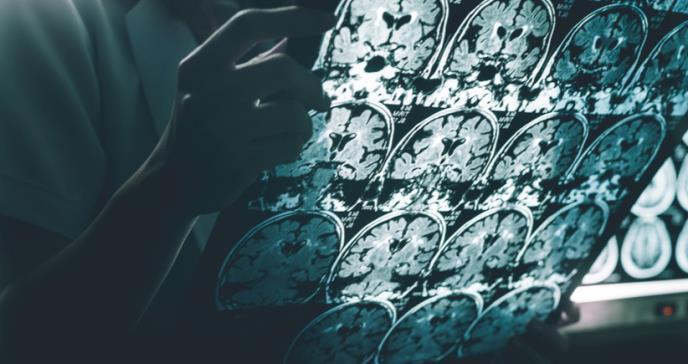 Desde la adolescencia se podrían detectar biomarcadores del alzhéimer