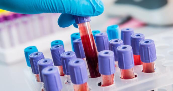Nuevo análisis de sangre podría detectar más de 20 tipos de cáncer