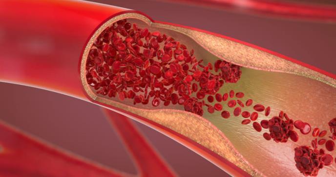 Obesidad, diabetes e hipertensión en la adolescencia envejecen las arterias