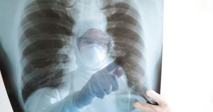 Actualización del uso de imágenes durante la pandemia de COVID-19