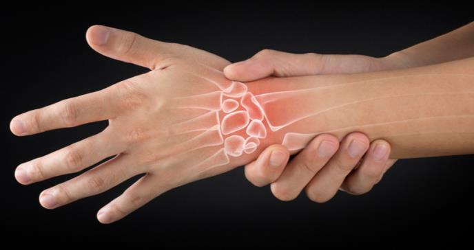 Causas y señales de alerta de la artritis reumatoide
