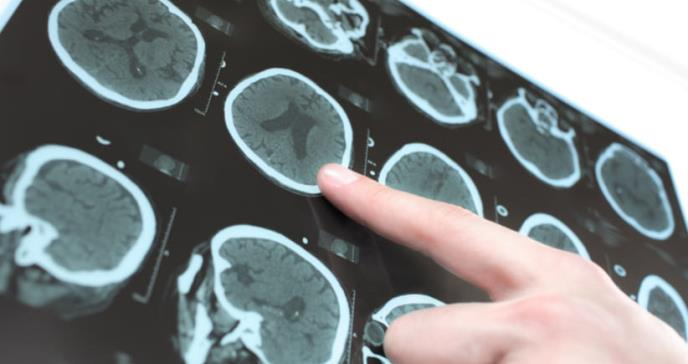 Asocian la extracción del apéndice con el desarrollo de la enfermedad de Parkinson