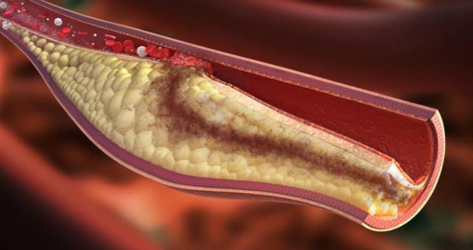 Uno de cada 10 pacientes que sufre un ataque cardíaco tiene colesterol familiar