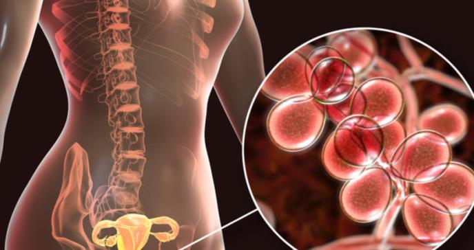 Avances en el tratamiento de la infertilidad causada por la endometriosis