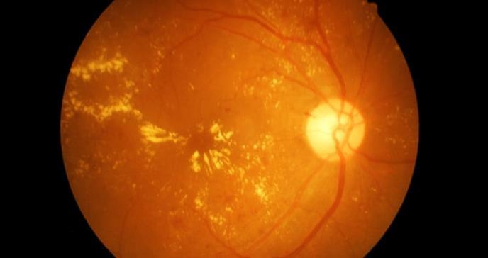 Bebidas para diabéticos asociadas con enfermedad ocular
