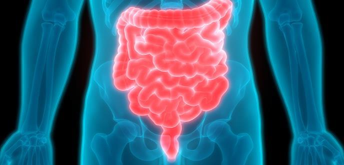 Biosimilar, un medicamento para tratar pacientes con enfermedad de Crohn y Colitis Ulcerosa