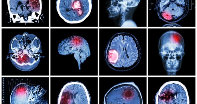Buscan clasificar a la esquizofrenia como enfermedad neurológica
