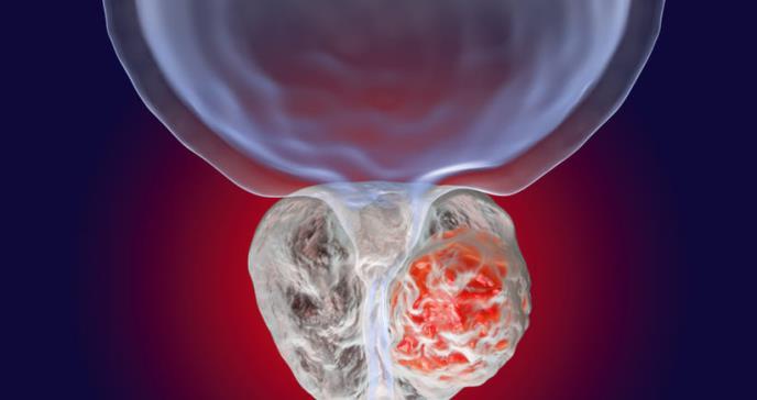Estudio muestra la eficacia del primer tratamiento personalizado para el cáncer de próstata avanzado