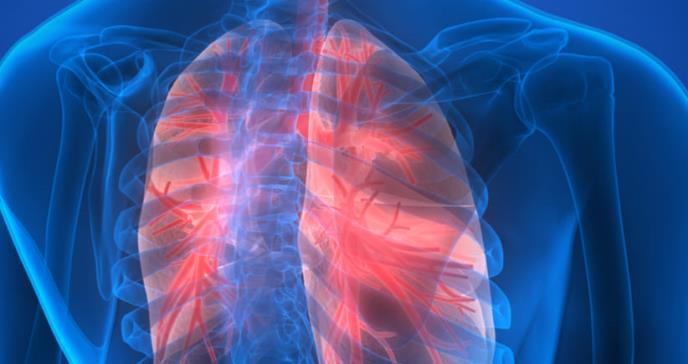 Cáncer de pulmón con mayor prevalencia en las mujeres