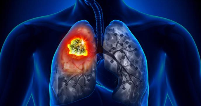 Importancia de mantener tratamiento para cáncer de pulmón durante pandemia de COVID-19