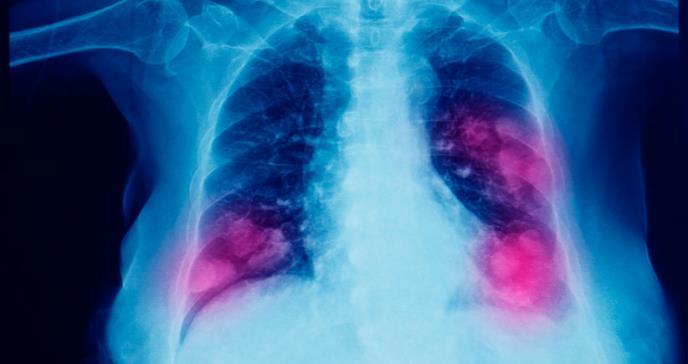 Cáncer de pulmón: síntomas, detección y tratamiento