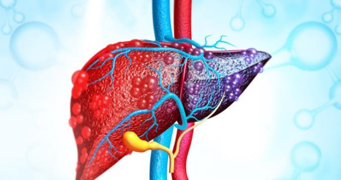 El cáncer de hígado podría prevenirse con las estatinas
