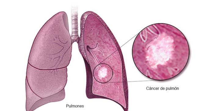 Cáncer de pulmón: Significativa recurrencia en población no fumadora