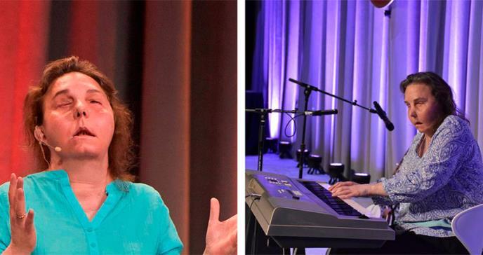 Carmen Tarleton: la primera estadounidense que recibe dos trasplantes de cara