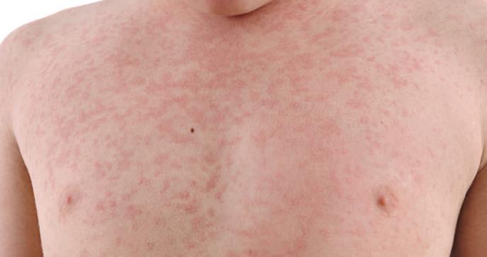 Casos de sarampión en EE.UU. en segundo pico más alto desde que se eliminó la enfermedad en 2000