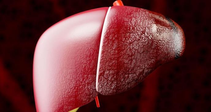 CBP: la enfermedad hepática que cambia la vida de sus pacientes