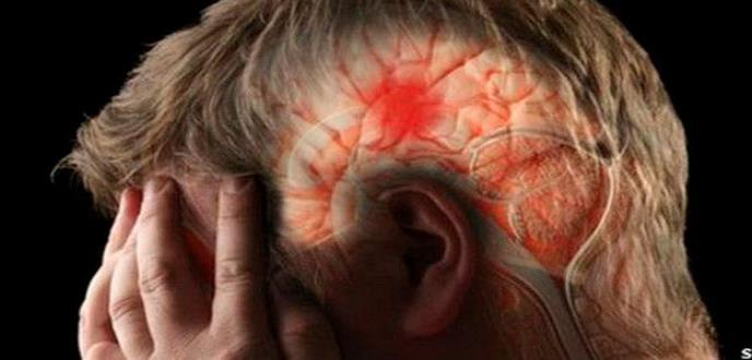 Estos síntomas lo ayudarán a detectar un derrame cerebral