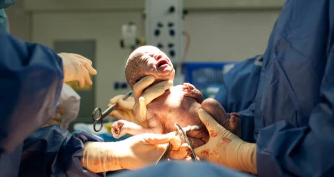 La cesárea, factor de riesgo para el desarrollo psicológico en gemelos