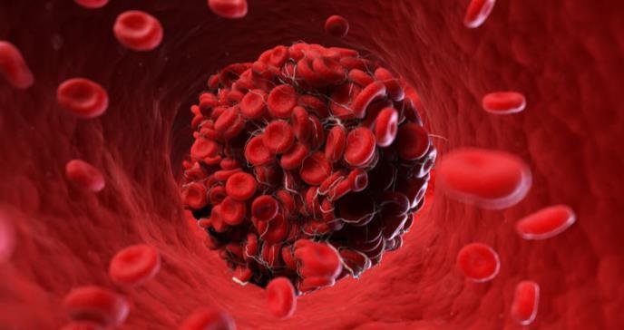 Pacientes con COVID-19 tuvieron un tiempo prolongado de tromboplastina parcial activada (aPTT)
