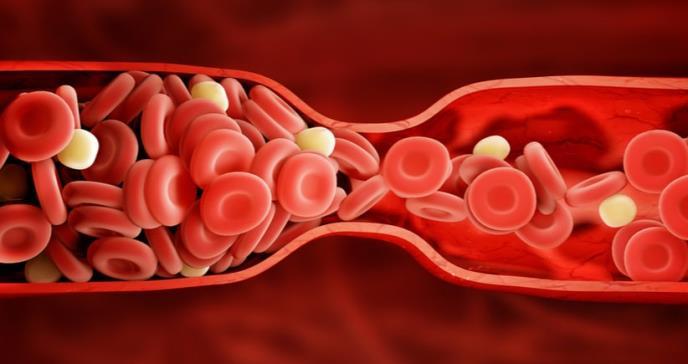 Las carnes rojas y blancas son igual de malas para el colesterol