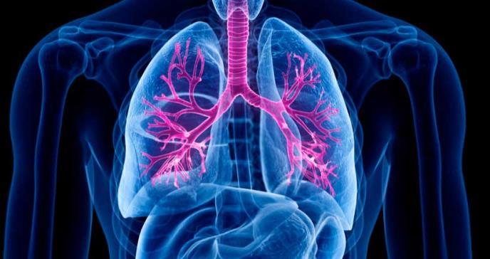 Combinación de tres fármacos reduce síntomas en pacientes con fibrosis quística