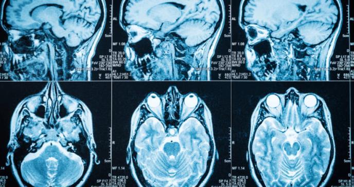 Cómo reducir el riesgo de padecer demencia