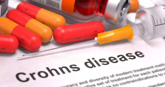 Cómo tratar la condición de Crohn