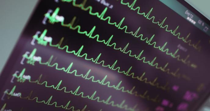 Cómo utilizar la radioterapia para curar arritmias en el corazón
