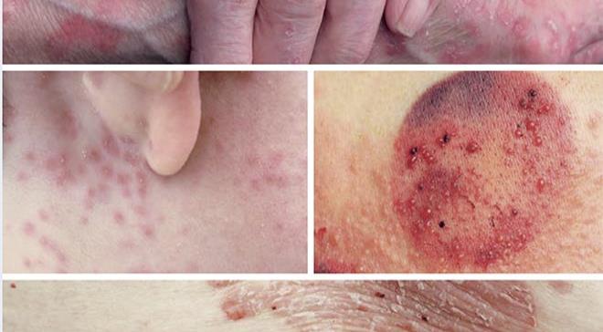 Complicaciones de la piel en el paciente diabético