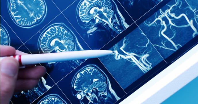 Logran aliviar síntomas de esquizofrenia en nueva investigación