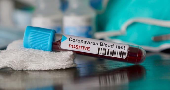 Estados Unidos confirma cinco casos de coronavirus de Wuhan