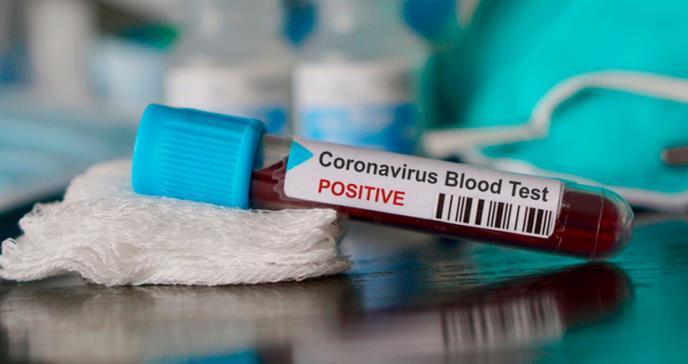 Departamento de Salud no reporta muertes adicionales por COVID-19 en la isla