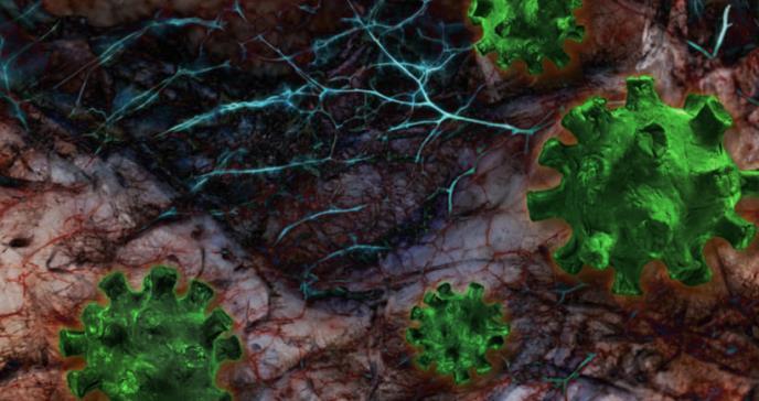 COVID-19: daño en los capilares impide la absorción de oxígeno en sangre