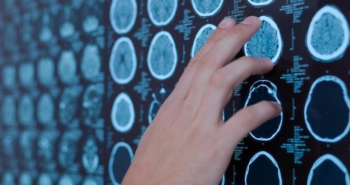 Graves manifestaciones cerebrales a causa del COVID-19