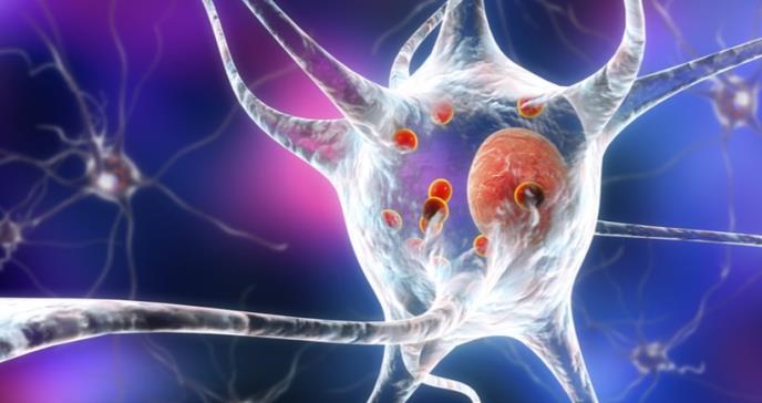 Cuatro síntomas que podrían indicar que padecerás Parkinson en menos de diez años