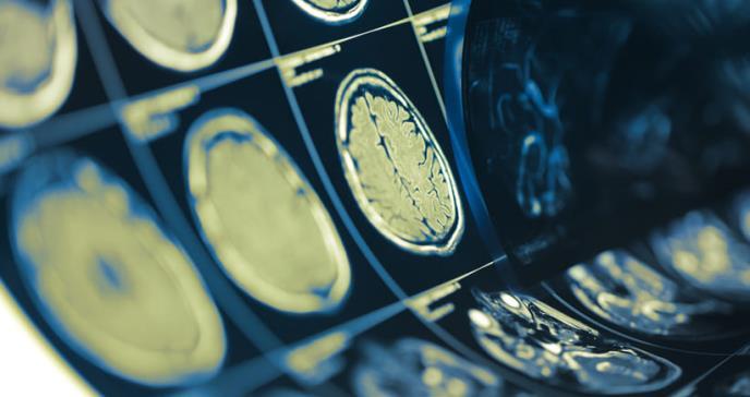 Nuevo método para diagnosticar daños cerebrales
