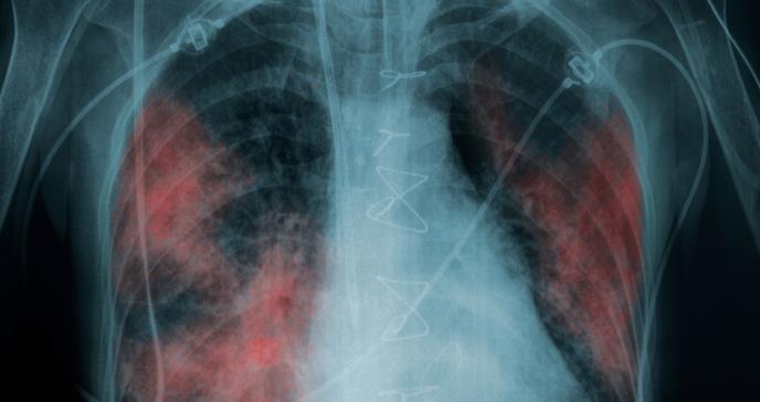 COVID-19: El grave daño que puede causar el virus a pacientes asintomáticos