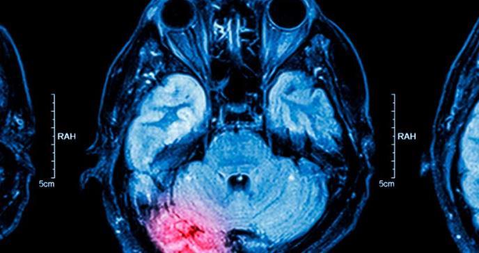 Delirio después de una cirugía severa puede estar asociado con una lesión cerebral