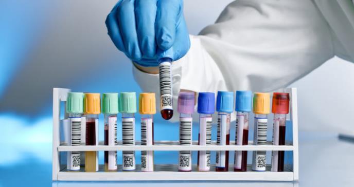 Departamento de Salud ordenó 200 mil rapid kits para detectar Covid-19
