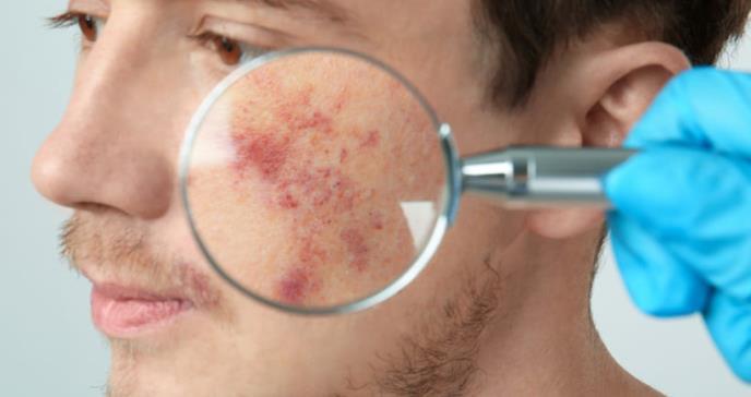 Dermatitis atópica: trastorno que va más allá de una patología cutánea